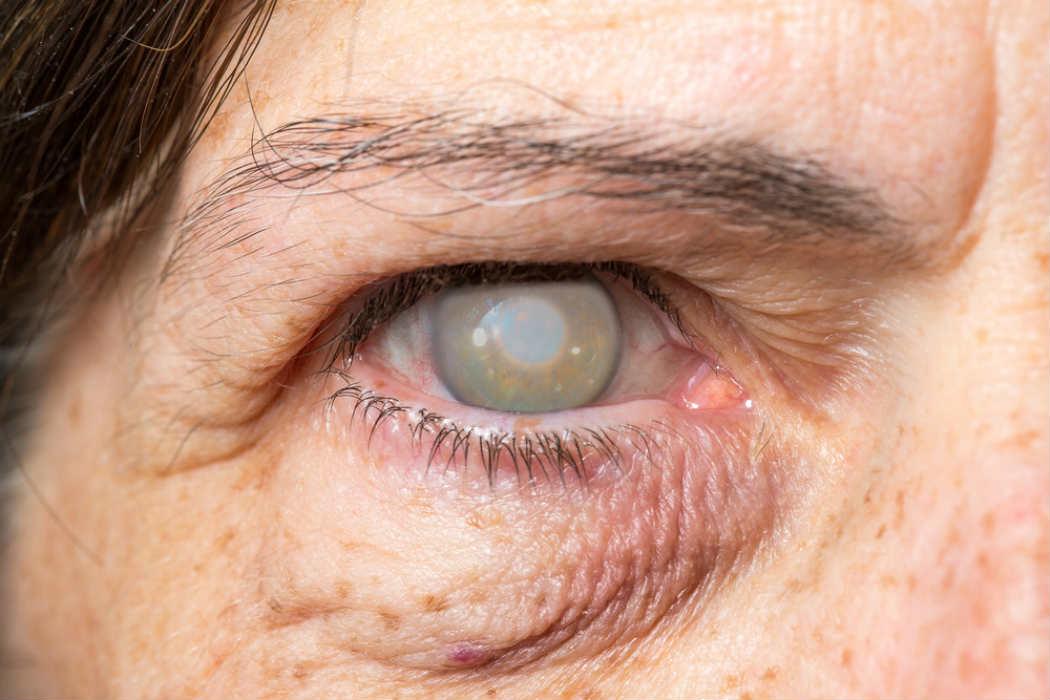 Ops Reconoce El Trabajo De M 233 Xico Para Eliminar El Tracoma